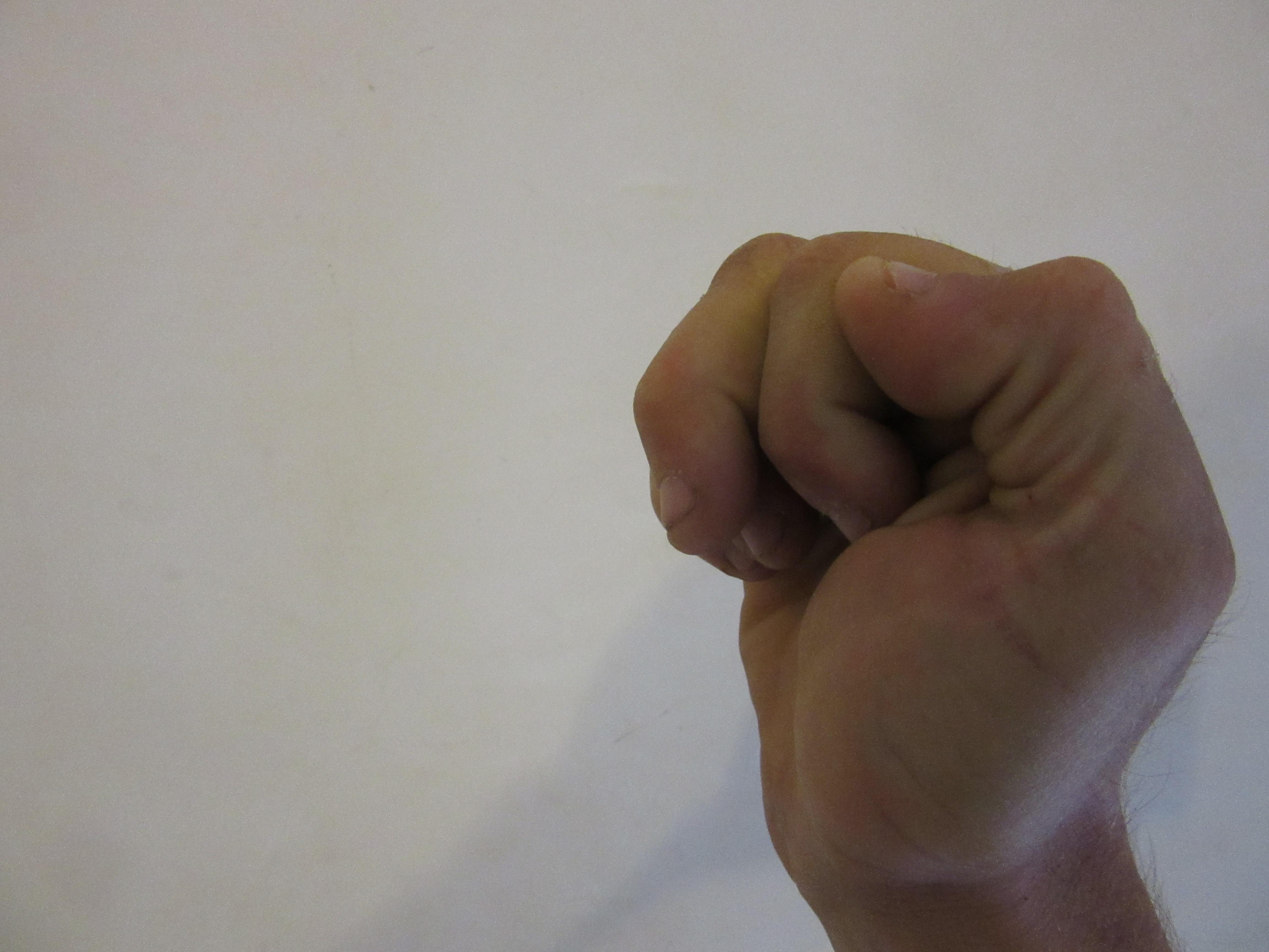 Finger Pulley Injuries Explore Climb Repeat